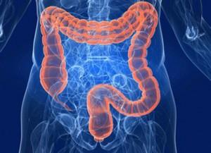 tumore intestino