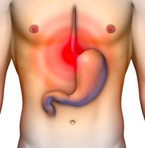 reflusso esofageo