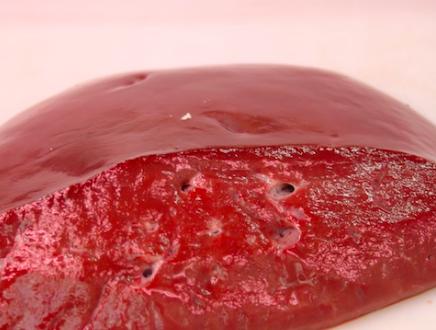 Trattamento di Cheboksary thrombophlebitis