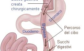 bypass-gastrico-e-rischi