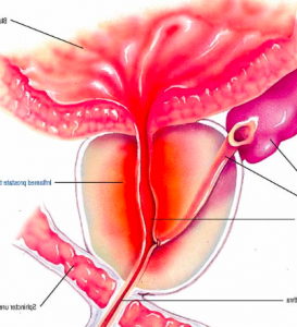dieta per prostata infiammata