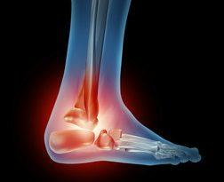 Evitare il dolore alla caviglia