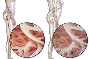 ossa deboli alimentazione